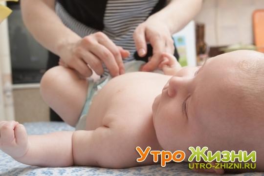 Кровит пупок у новорожденного
